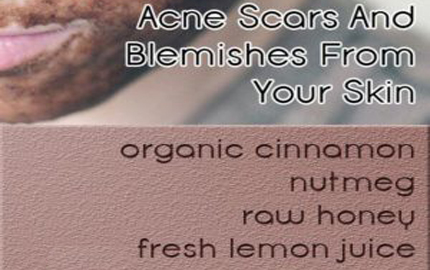 Face Mask To Get Rid Of Acne Scars