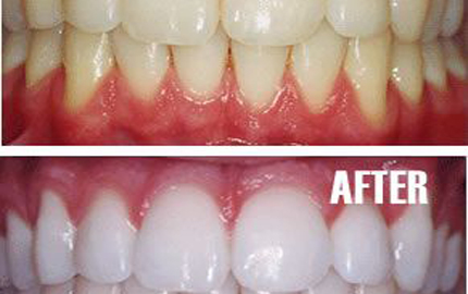 Whiten Teeth Naturally at Home
