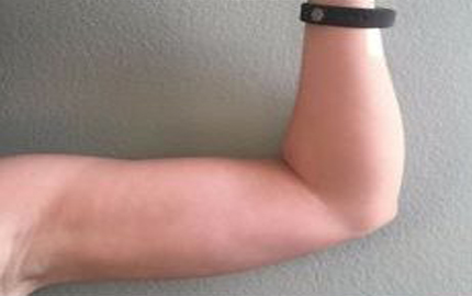 Got Rid Of Arm Flab In Time
