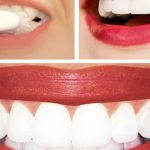 Dr.Oz's Teeth Whitening Home Remedy