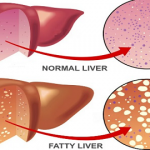 6 Home Remedies for Fatty Liver Disease