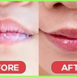 7 home remedies that can treat dry, chapped lips
