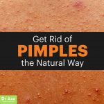How to Get Rid of Pimples the Natural Way
