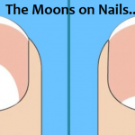 The Moons On Your Nails Can Indicate These 13 Health Problems