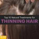 Top 10 Natural Treatments for Thinning Hair