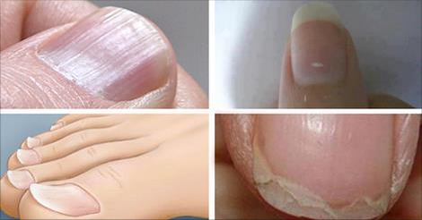7 Common Nail Conditions Linked To Serious Diseases That You Should Not Ignore