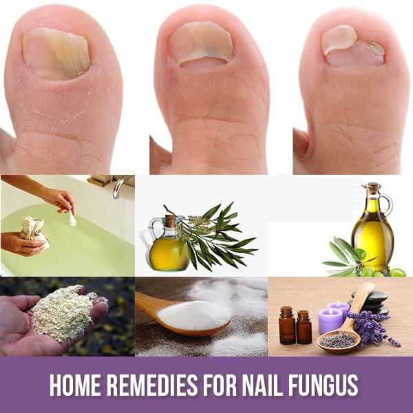 This 2-Ingredient Mix Is All You Need To Get Rid Of Nail Fungus For Good