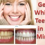 4 Steps To Whiten Yellow Teeth And Remove Plaque And Tartar Buildup