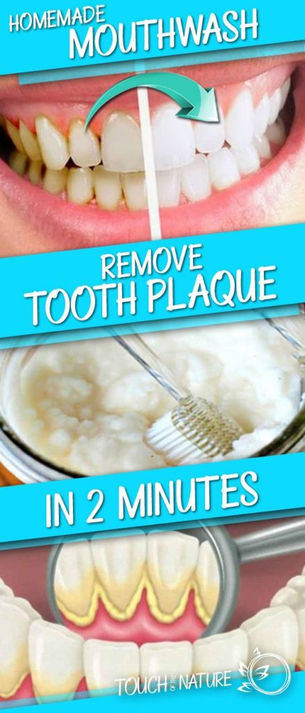 A Mouthwash for Removing Plaque from the Teeth in Just 2 Minutes