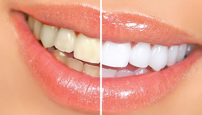 Tips for Whitening Yellow Teeth
