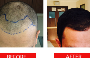 Inexpensive Price Of Hair Transplant And The Technical Process