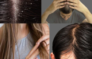 Varieties of hair issues: And  eliminate hair issues?