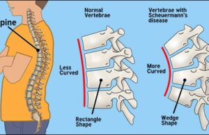 Scheuermann's Illness and its primary distinction from Scoliosis? - Dr. Vikram's Weblog